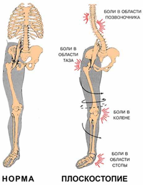 Лечат плоскостопие двумя путями: консервативно и хирургически