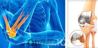 Титановый сустав