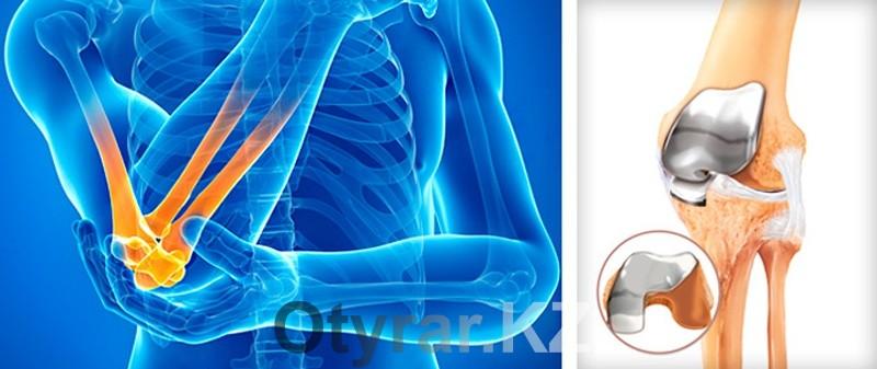 Что такое титановый сустав асептический некроз суставной поверхности большеберцовой кости