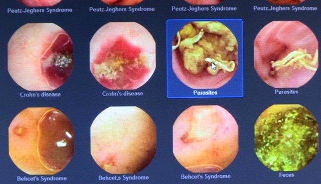 Высокое качество изображения, позволяют наиболее точно поставить пациенту диагноз