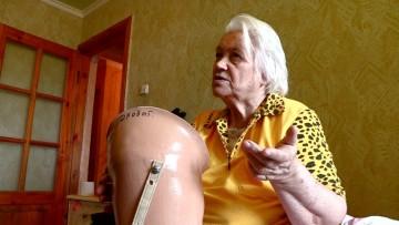 Протез для пенсионерки-инвалида Лидии Дробот
