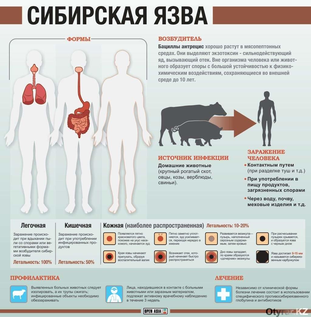 сибирская язва инфографика