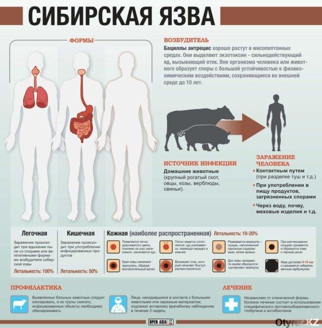 сибирская язва в казахстане