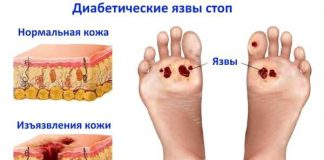 Диабетическая стопа