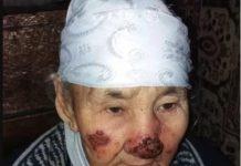Жители Арысского района ЮКО стали жертвами неизвестной болезни