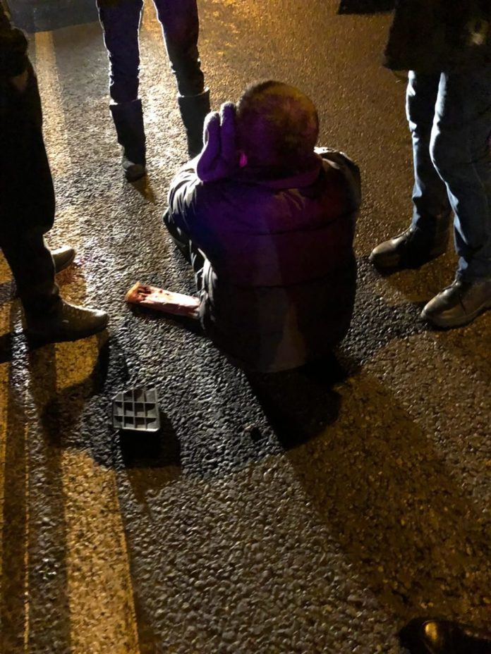 В Шымкенте на улице Сайрамской сбили пешехода